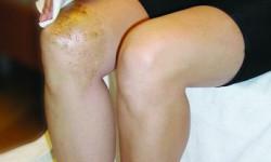 Как лечить больные суставы с помощью крапивы