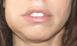 Чем полоскать рот после удаления зуба в домашних условиях, чтобы быстрее зажило: народные средства и лекарственные препараты