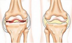 Лечение суставов солью: как эффективно применять соль для лечения суставов