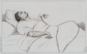 Эпилепсия лечение в домашних условиях