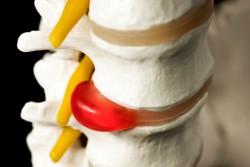 Межпозвоночная грыжа: лечение народными средствами в домашних условиях