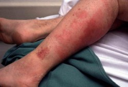Рожа на ноге лечение