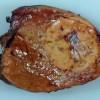 Жировой гепатоз печени